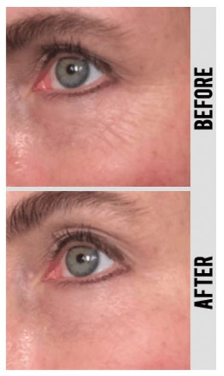 Instant Wrinkle Reducer Before and After